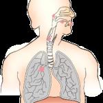 โรคมะเร็งปอด - lung cancer