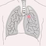 ก้อนในปอด(lung mass)